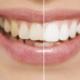 Tannbleking hos tannlege: 15 min. fra Bergen
