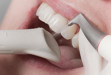 Tannstein og misfarging: Rens tennene med AirFlow